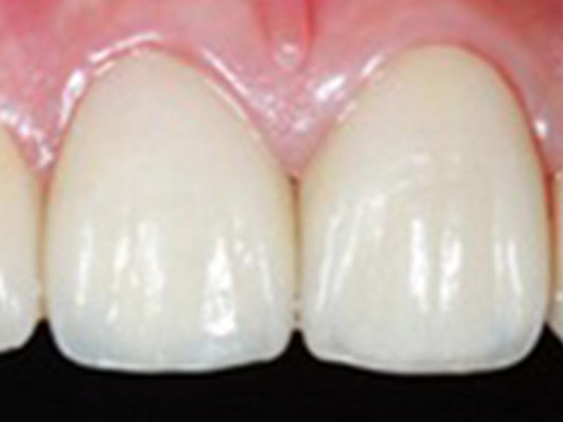 宜蘭植牙新聞│口腔健康-全瓷冠比傳統瓷牙更美觀 又容易打理