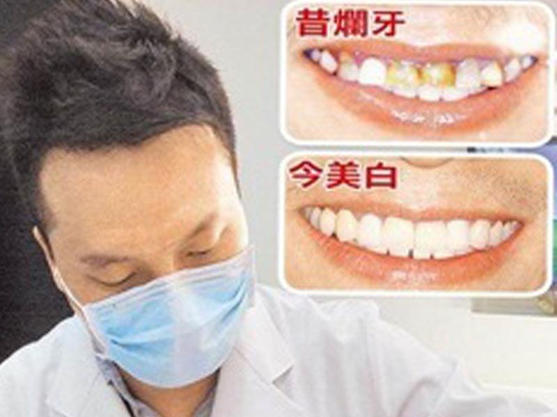 宜蘭植牙新聞│嚼花生夜磨牙 27歲男斷7顆牙