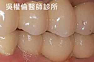 植牙案例|王先生