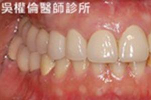 植牙案例|陳先生