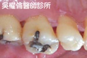 牙周病案例|李先生