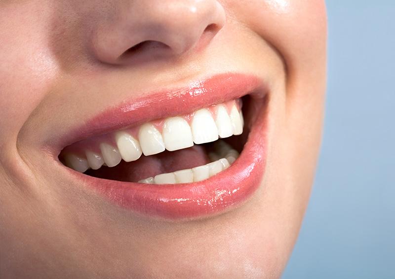 牙周病治療後照護
