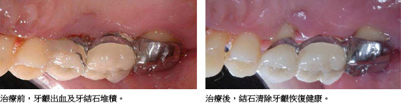 牙周病的治療方式